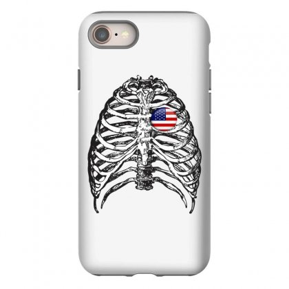 X-ray Iphone 8 Case Designed By Ran Studio