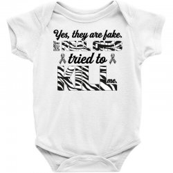 yes, they are fake. my real ones tried to kill me carcinoid cancer Baby Bodysuit | Artistshot