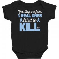 yes, they are fake my real ones tried to kill me stomach cancer Baby Bodysuit | Artistshot