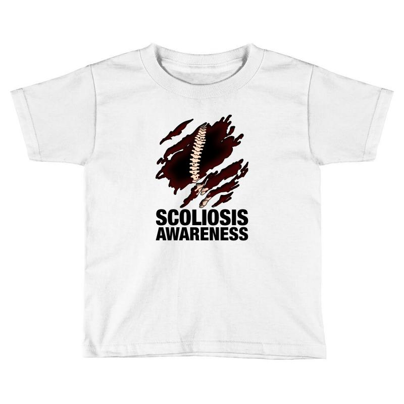 7246689c Custom Scoliosis Awareness For Light Toddler T-shirt By Nurbetulk ...